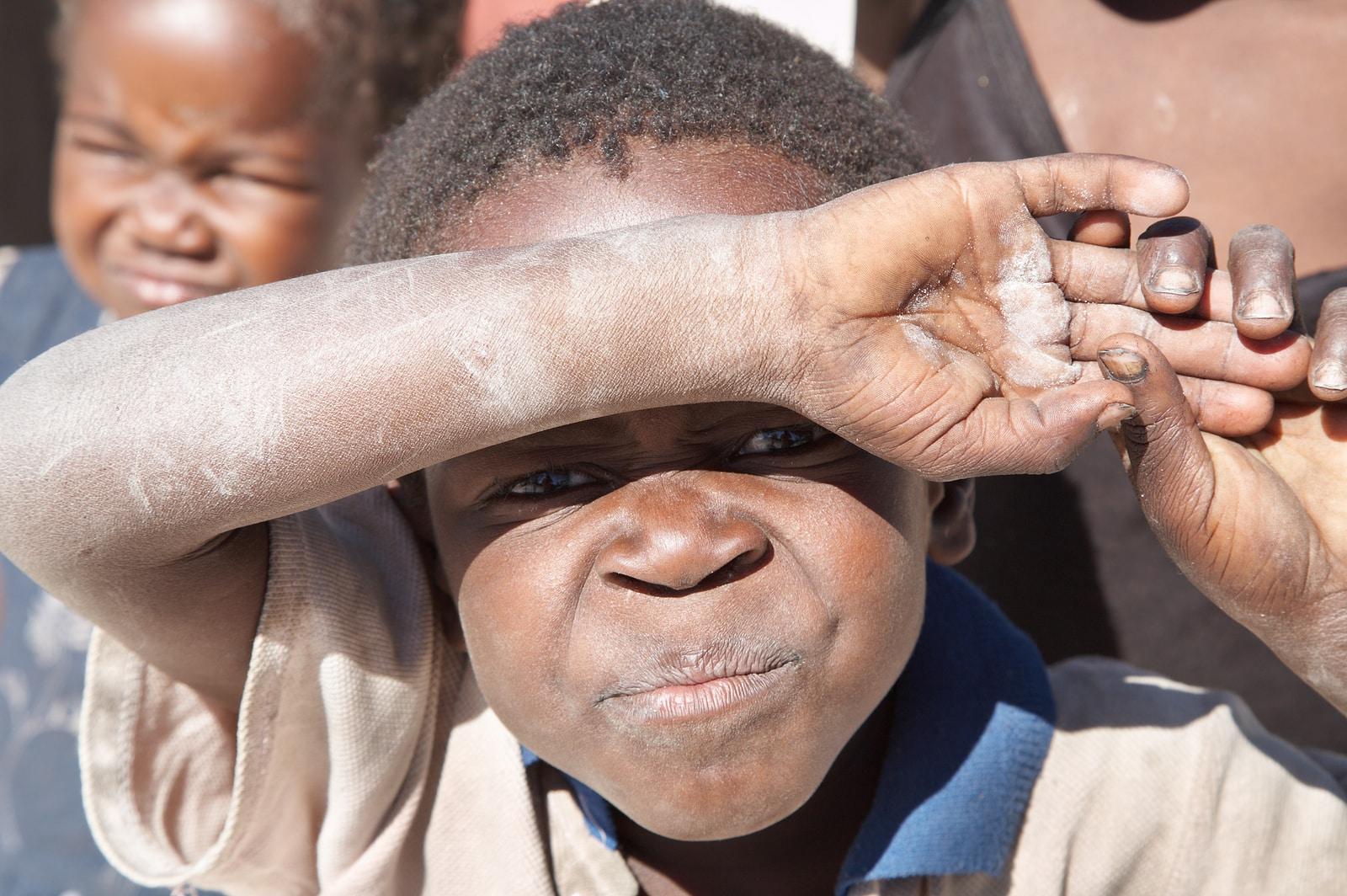 Sito di incontri HIV in Zimbabwe